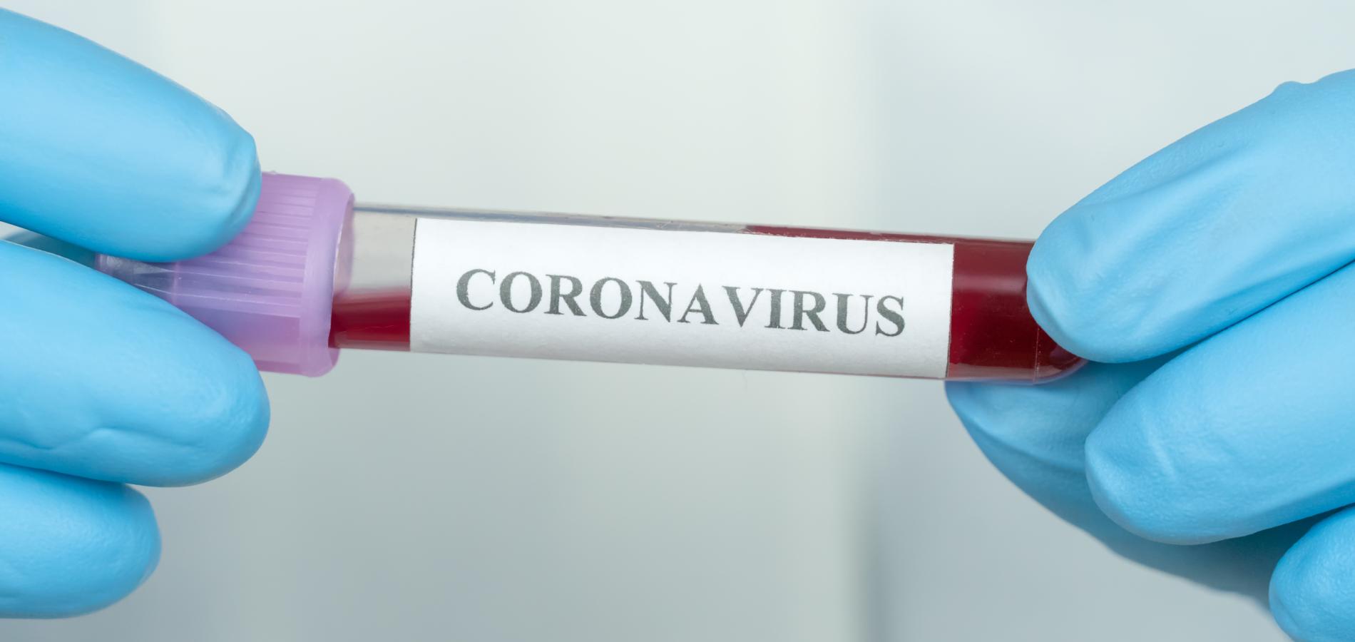 Тестирование на коронавирус - Complimed